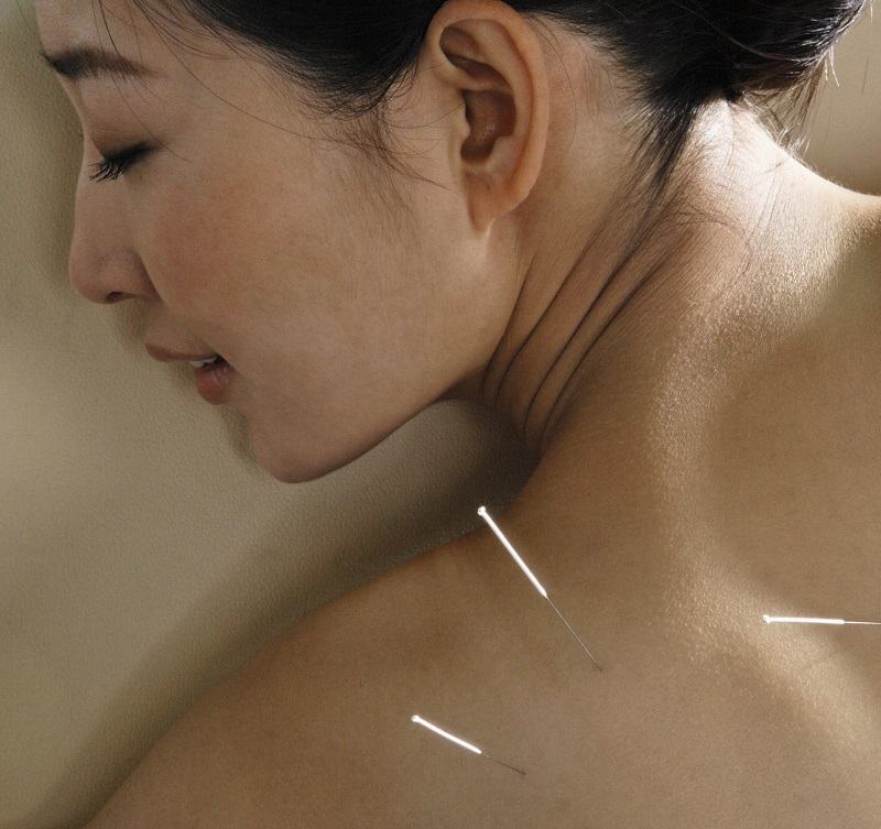 Acupuncture.80411347